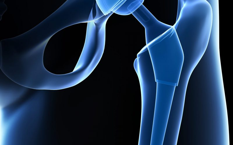 Künstliches Hüftgelenk bei Arthrose