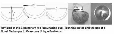 Hüftpfannenwechsel Oberflächenersatz vom Hüftspezialist